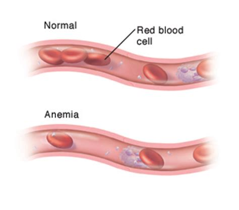 signs of anemia after c section anemia articles mount nittany health system