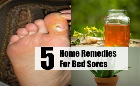 treatment for bed sores 5 top home remedies for bed sores natural remedy