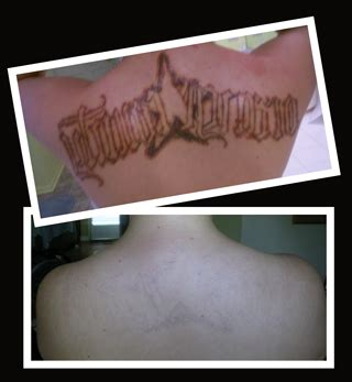 tattoo removal in louisiana removal cleanslate la