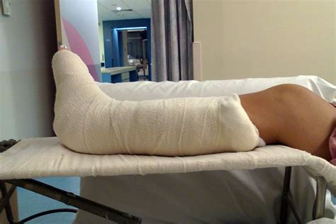 broken leg broken leg in hospital images