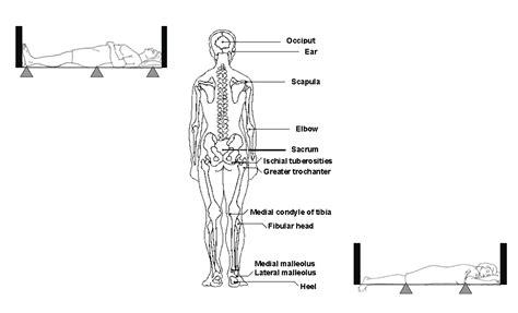 pressure ulcer points diagram pressure ulcers