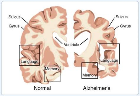alzheimer s a possible breakthrough in alzheimer s treatment