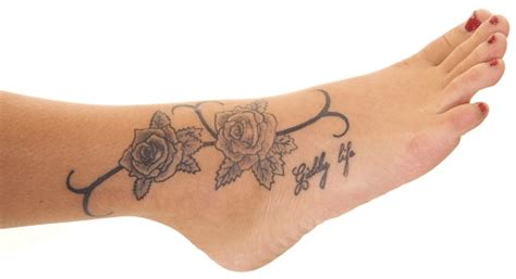 tattoo removal maryland removal bunin md