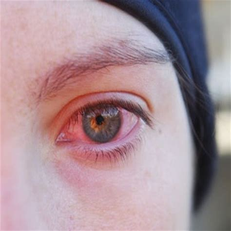eye infection 12 most effective cures for eye infection how to