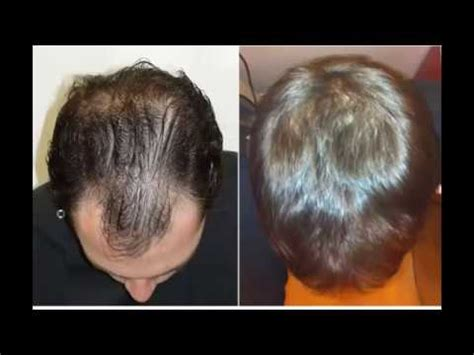 rogaine before and after pictures results of using minoxidil 5 before and after youtube