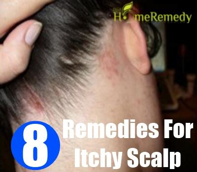 itchy scalp home remedy home remedies for itchy scalp treatments cure