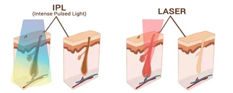 which is better ipl or diode laser hair removal which is better ipl or laser for hair removal