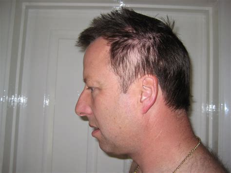 my hair is thinning on the sides afro american hair loss andrew tokely s breast cancer blog