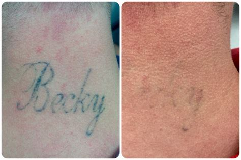 most effective tattoo removal method laser removal perth dr ehsan jadoon