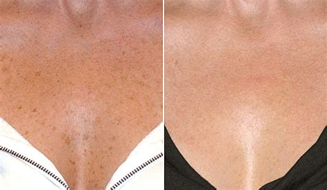 blue light treatment for sun damage sun spots age spots sun damage treatment birmingham al