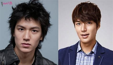 facts of korean actor lee min ho plastic surgery the plastic surgery helped lee min ho become the brightest