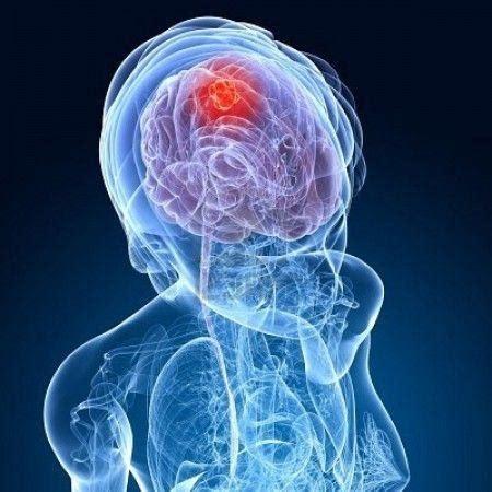 tumore al cervello sintomi