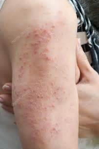 dermatitis al 233 rgica de erupci 243 n foto de stock 37576605