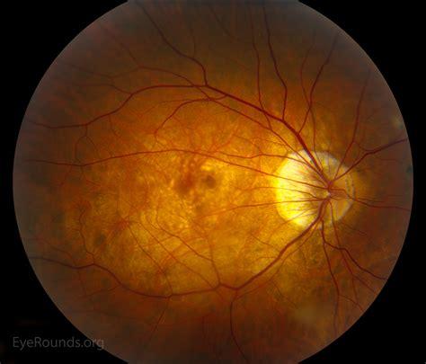 fundus changes pathologic myopia with bilateral posterior staphylomas