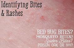 identifying bug bites heres   figure   bit  health food illnesses red