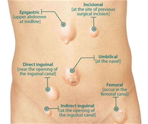 ernia inguinale interna types of hernia