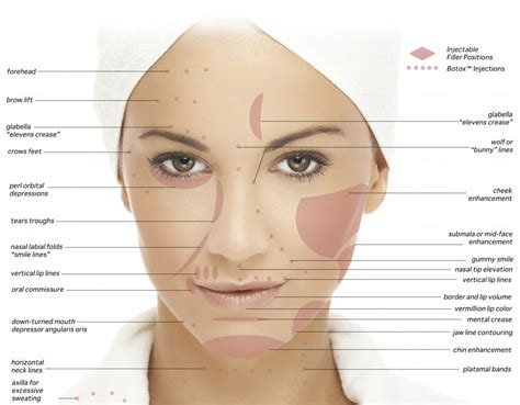 7 Wrinkle Areas And How To Treat Them by Treatment Areas Botox Restylane Juvederm Juv 201 Derm