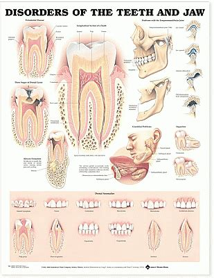 Cd E Book Dental Erosion disorders of the teeth and jaw anatomical chart