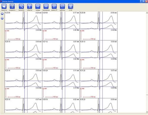 Holter Monitor Report Template ap holter monitor