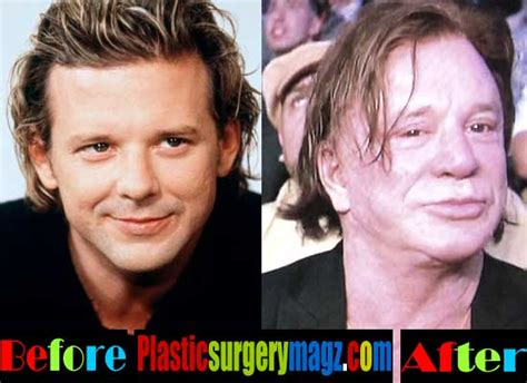 worst celeb plastic surgery worst celebrity plastic surgery worst male celebrity