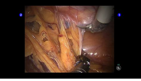 pelvic adhesions after c section adhesions explained and how gynecologic surgery can fix them