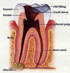 root canal diagram root canals biological dentistry biological dentists