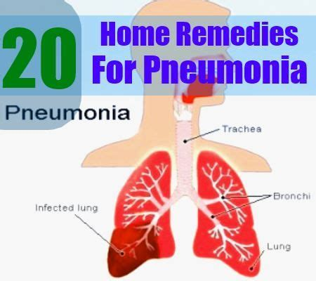 the most common symptoms of pneumonia are fever chills