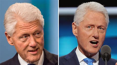 did hillary clinton have plastic surgery 2015 did bill clinton get a facelift bill clinton plastic