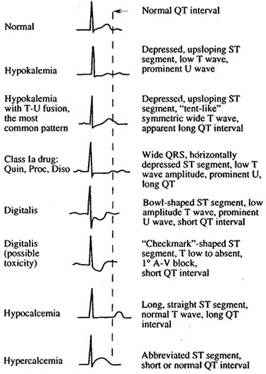 ecg pattern meaning tom evans ecg cribsheets palm version