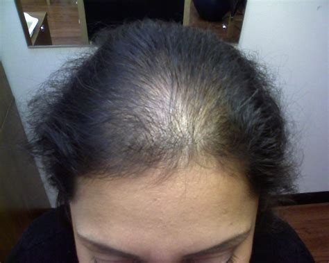 alopecia hair loss in women study says no link between iron deficiency female hair