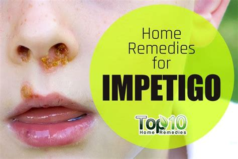 home remedies for impetigo top 10 home remedies