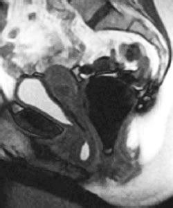 Pelvic Floor Drop by Dynamic Pelvic Mri For Zwanger Pesiri Radiology