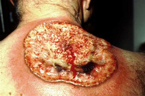 bleeding from rectum white pimples on tongue newhairstylesformen2014