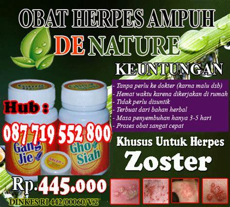 Jual Obat Herpes pengobatan herbal untuk penyakit herpes cara mengobati