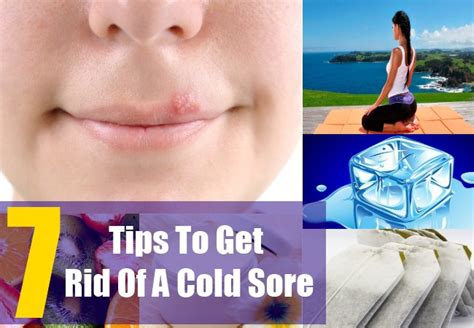 how to get rid of a cold sore quickly ways to