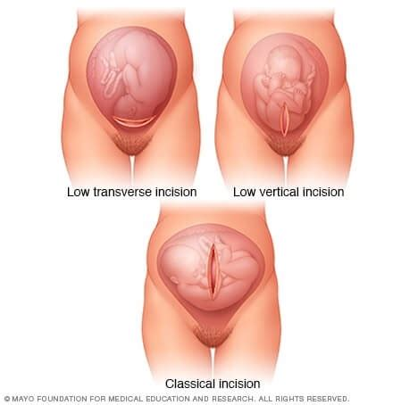 why is it called cesarean section what is a vbac are c sections bad for you familyeducation