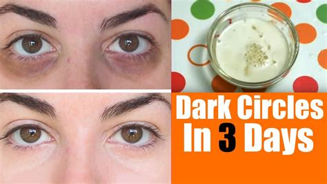 7 Best Treatments For Eye Circles by Home Remedies To Remove Circles Powerfull