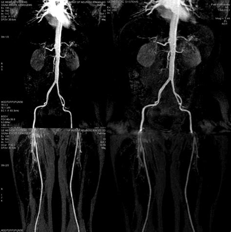 Three Dimensional Contrast Enhanced Mr Angiography Of Aortic Dissection A Pictorial Essay by Spin Radiographers Contrast Enhanced Mr Angiography Of Abdominal Aorta And Lower Extremity