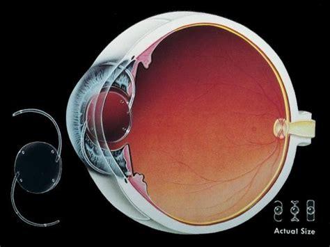 lens intraocular causes symptoms treatment lens