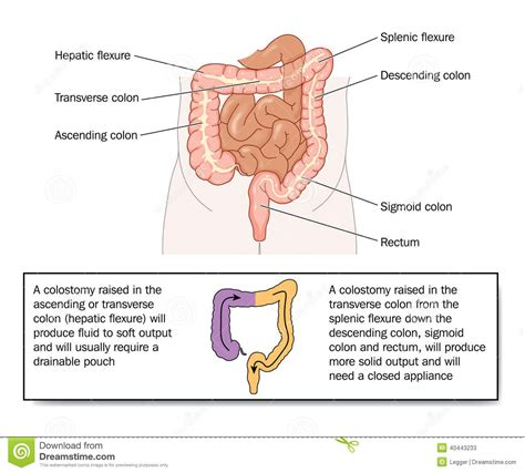 how to change a colostomy bag diagram stool quality of various colostomies stock vector image