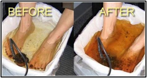 Foot Toxin Detox by How To Flush Toxins From Your Through Your See