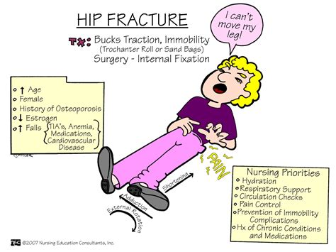Define Abduction Pillow by The 25 Best Hip Fracture Ideas On