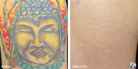 laser tattoo removal virginia beach removal before after photos 4 vanish laser clinic