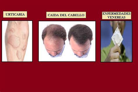 imagenes fuertes de enfermedades venereas develando la salud urticaria ca 237 da del cabello y
