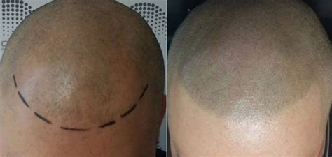 tattoo hairline cost hair and scalp pigmentation before and after pictures and