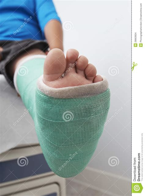 Baby Room Design by Boy S Leg In Plaster Cast Stock Images Image 29663924