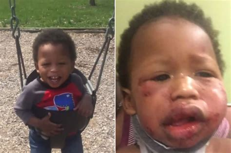 daycare indianapolis probe 1 year boy s apparent beating at day care st lucia news