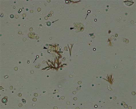 crystals in urine urinalysis archives eclinpath