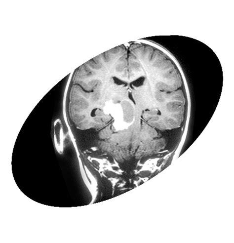 risonanza alla testa risonanza magnetica encefalo imaging caserta