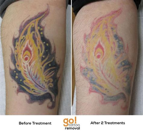 tattoo ink that can be removed 798 best tattoo removal in progress images on pinterest